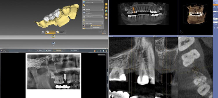 Integrierte Implantologie (CEREC® meets DVT)